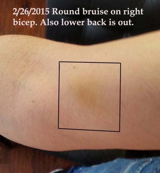 2 26 2015 bicep bruise.jpg