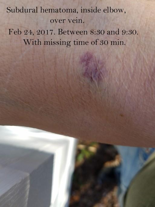 Feb 24 2017.jpg