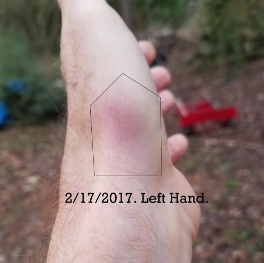 Hand bruise.jpg